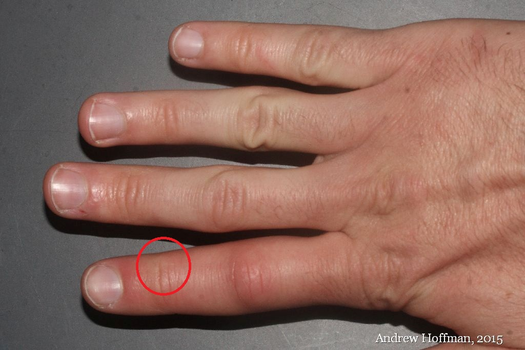 Wolf Spider Bite | This is what a bite from the largest ...