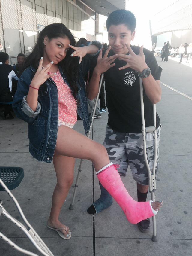 cukaiquk broken leg cast crutches broken leg ankle foot