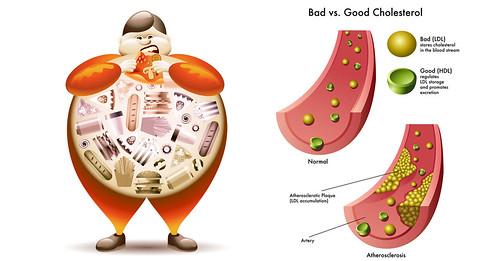 Kiểm soát tốt nồng độ cholesterol máu giúp phòng ngừa biến chứng tim mạch