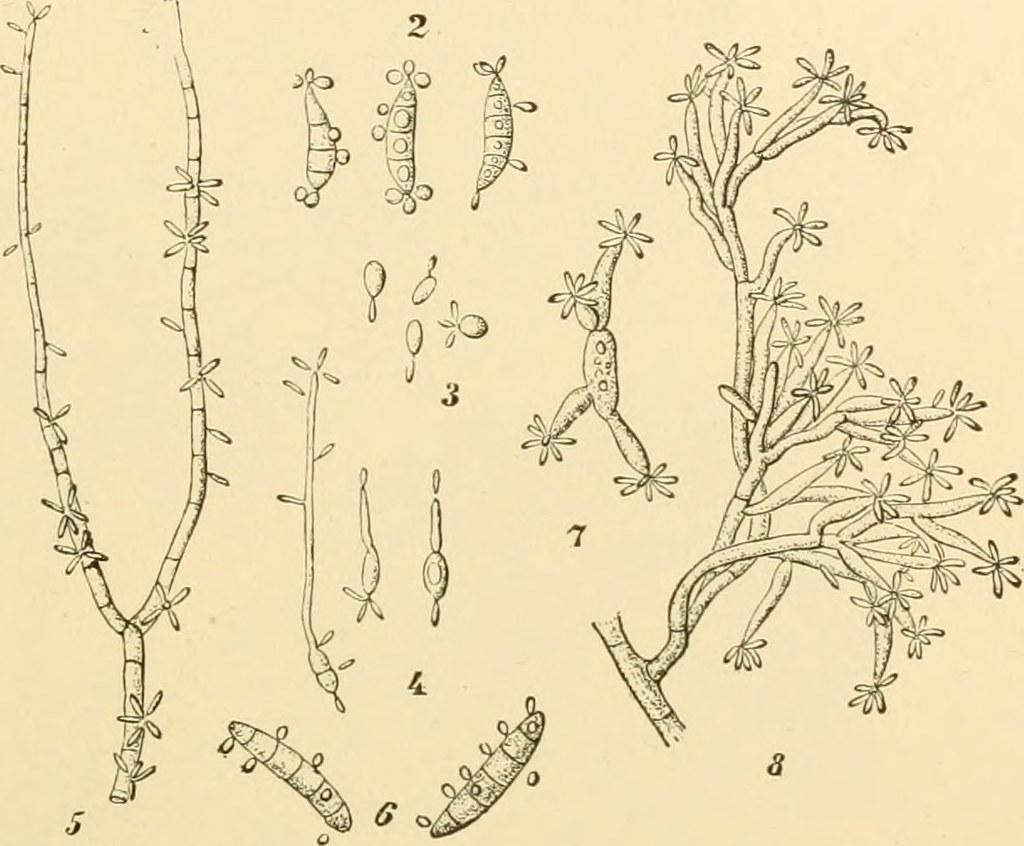 TRENCH WARFARE 1850