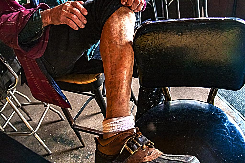Mike's bullet scar--Italian Market 2