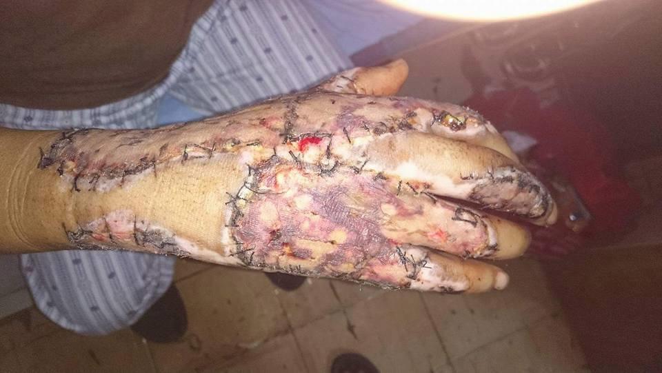 移工F職災狀況,右手掌遭滾燙橡膠嚴重灼傷。取自台灣國際移工協會臉書。
