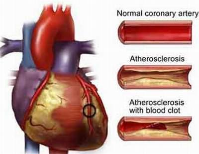 động mạch vành