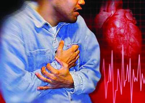 Đau tim, đau thắt ngực