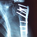X-ray shoulder 2-11-2004