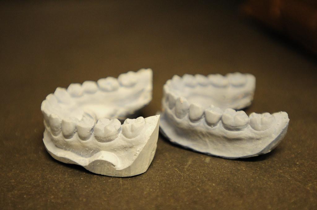 dental cast for monster teeth