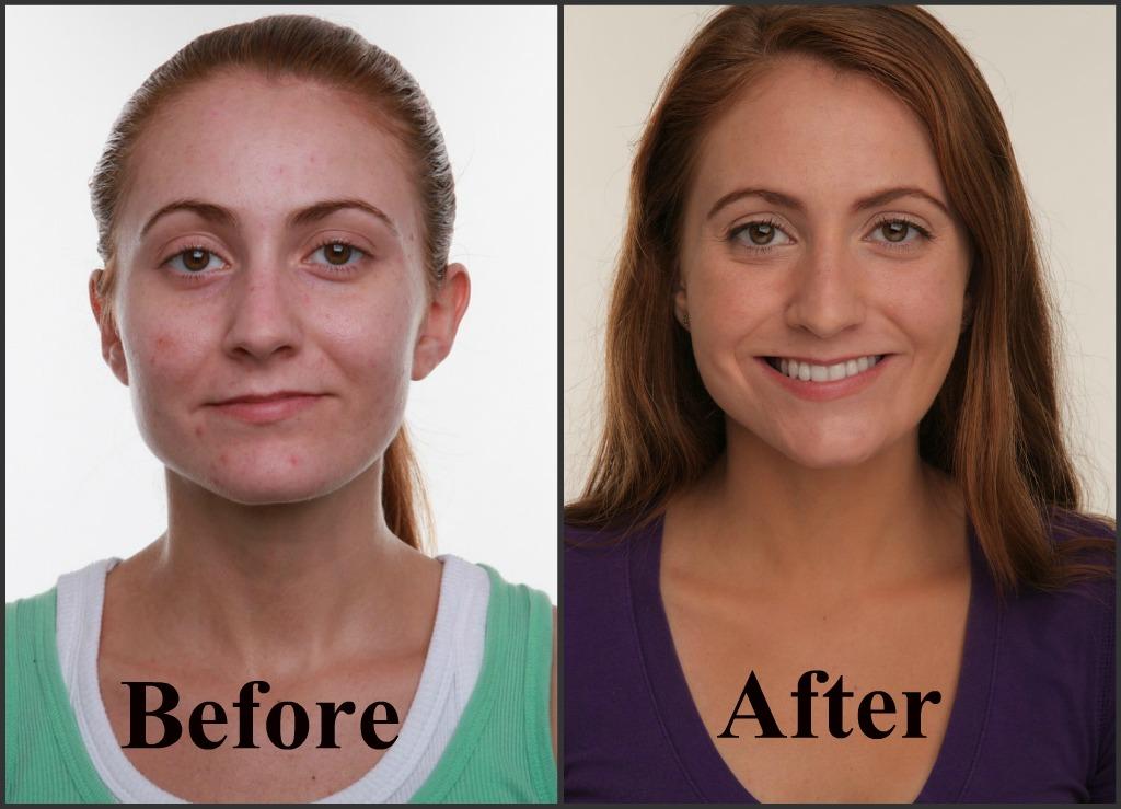 Neutrogena SkiniD Before & After Photo