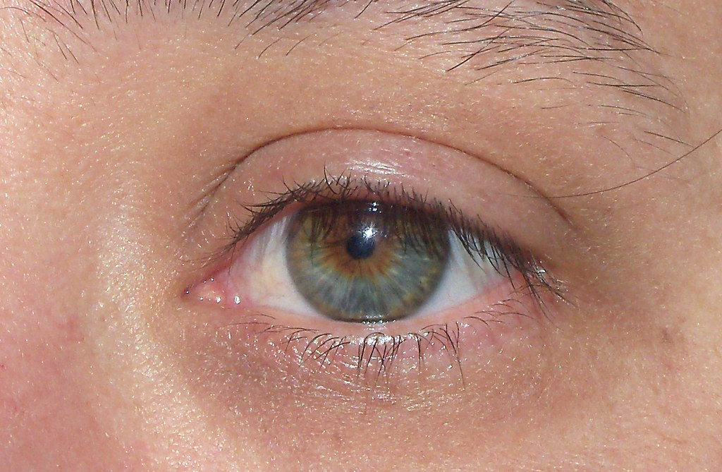 Hazel Eyes Central Heterochromia I Was Born With Dark