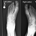 Xrays of my feet, before and after.