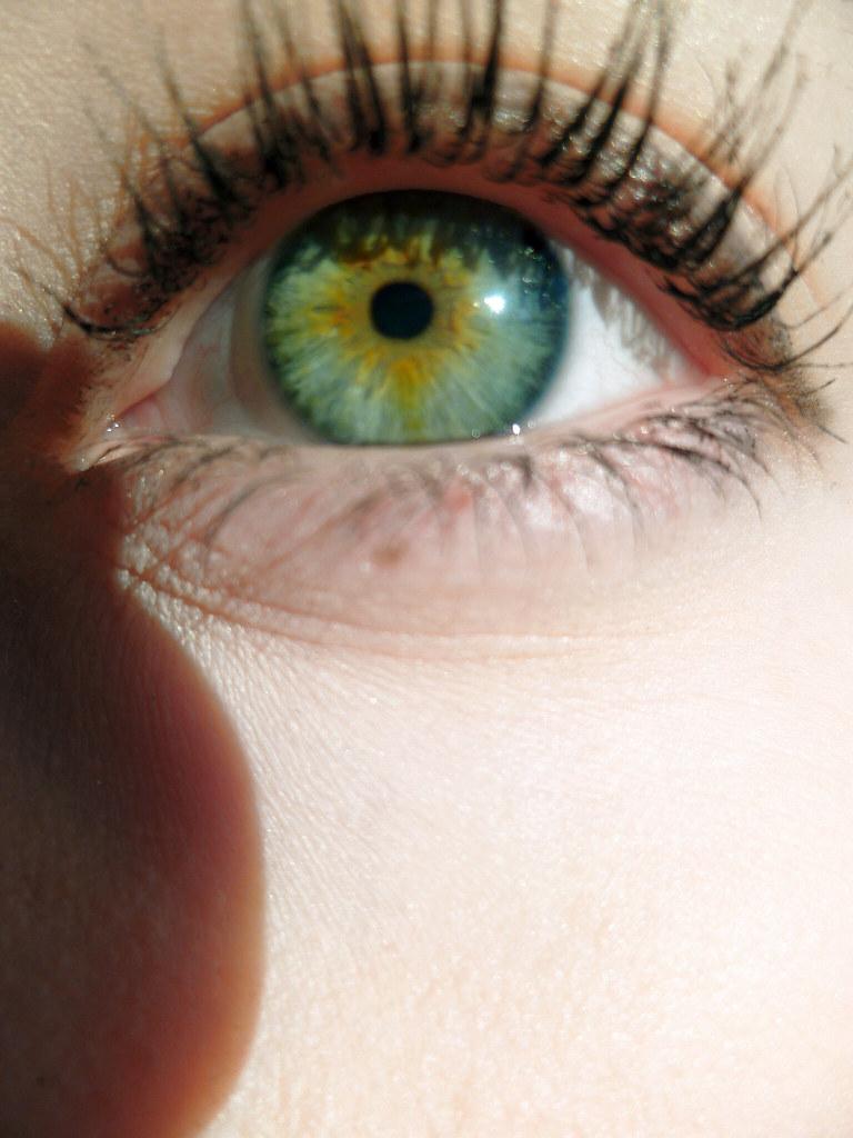 Central Sectoral Heterochromia My Left Eye Amanda