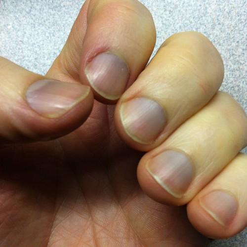 Images Of Fingernails Painted