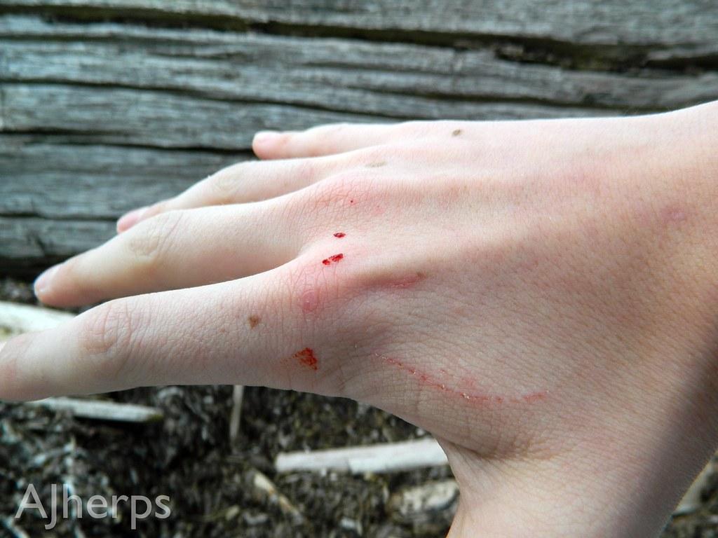 Garter Snake Bite Ajherps Flickr