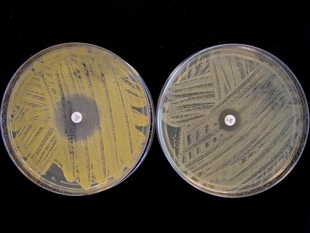 Staphylococcus aureus   Voedingscentrum