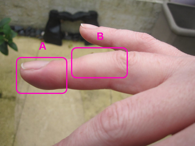 My Middle Finger Is Swollen Side View Distal Right Hand