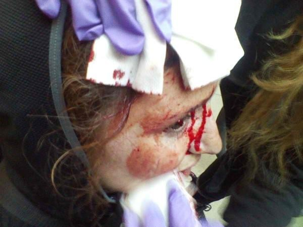 Chicago NATO woman bloodied by cops