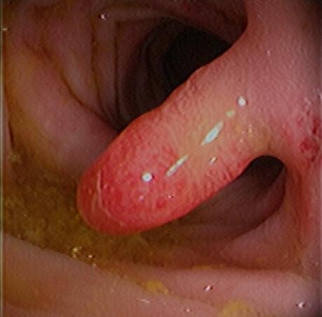 Anal sex ulcerative colitis