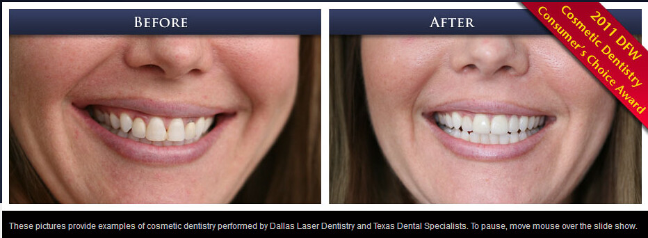 Dentist Dallas TX   Dallas Dental Arts