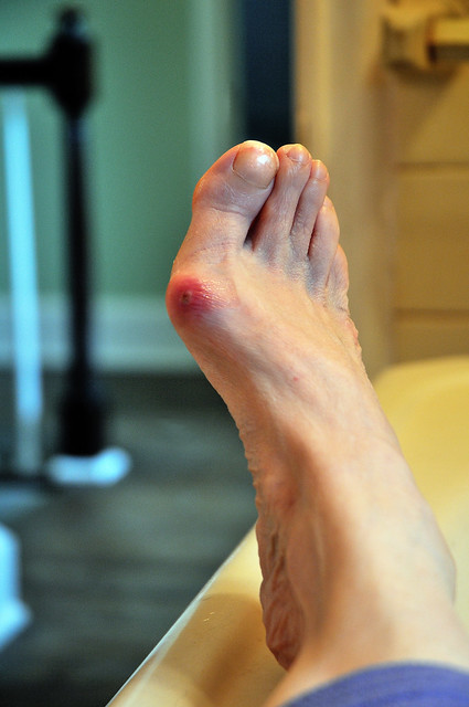 nonsurgical treatment for bunions