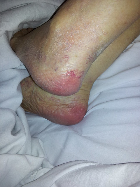 Early signs of bed pressure sores on mums heels 26 11 for Bed sore relief
