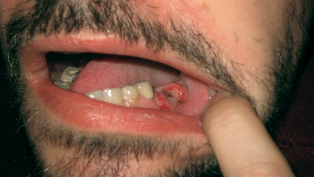 how to make a loose tooth not hurt