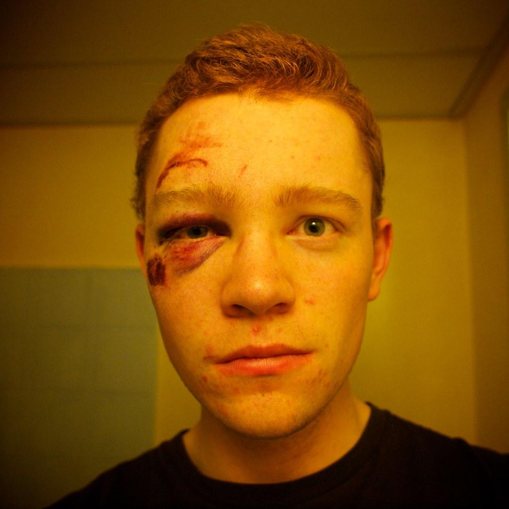 Black Eye Long Story Short I Got Hit By A Car Fiat 500