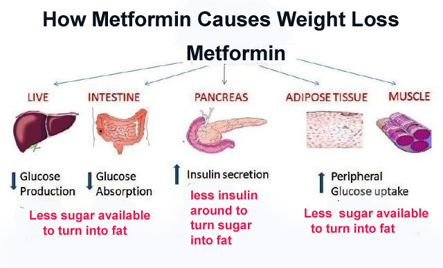 Weight Loss with Metformin | endocrinologist and weight ...