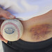 My Ethier Foul Ball Bruise