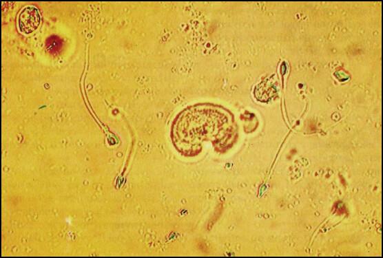 esperma orina