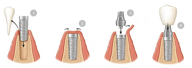 colocacion-implantes-dentales