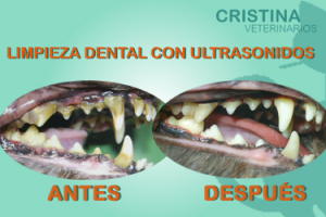 Dental-ANTES-DESPUES-300x200