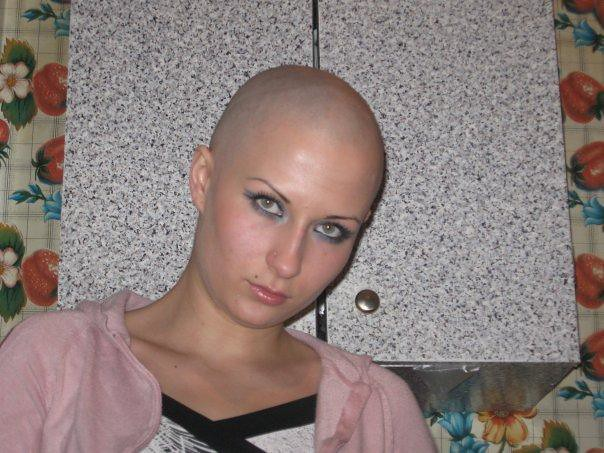 Bald Women Bald Women Keanu Ronin Flickr