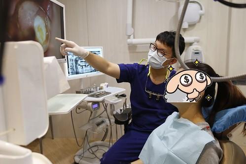 我的蛀牙得救了!板橋絕美牙醫顏成翰醫師的顯微根管治療術拯救了我 (12)