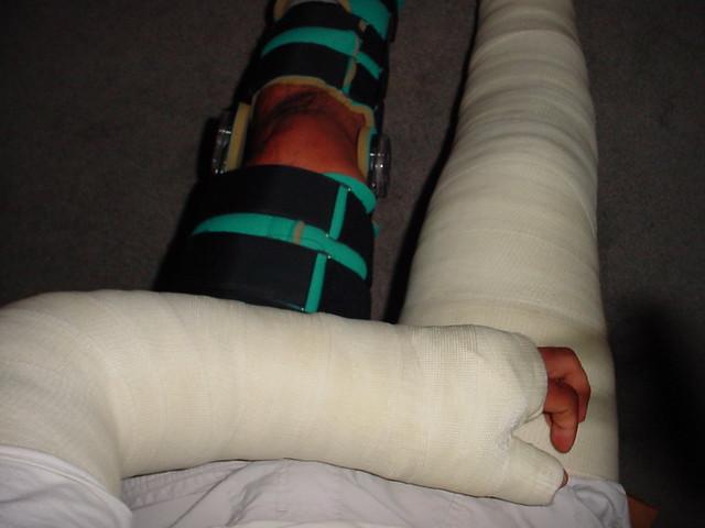 Long Leg Cast  LLC    Long Arm Thumb Spica Cast  LATS    Long Leg Knee    Dual Shoulder Spica Cast