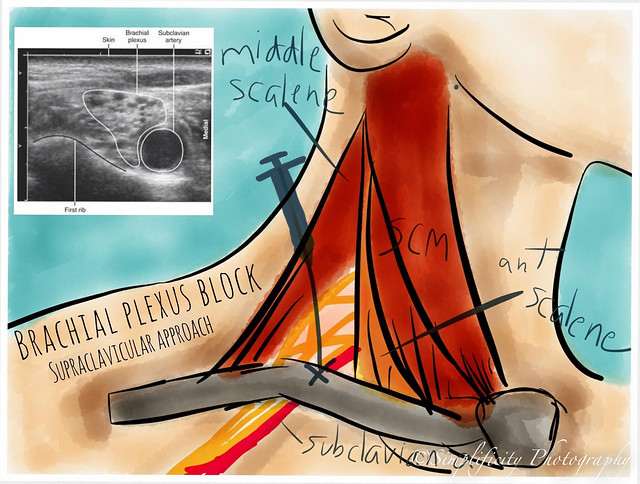 Brachial Plexus... Brachial Plexus Drawing