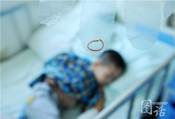A boys ' wrist band 3 parents in Sichuan province were found, by repeatedly discharging cannot bend