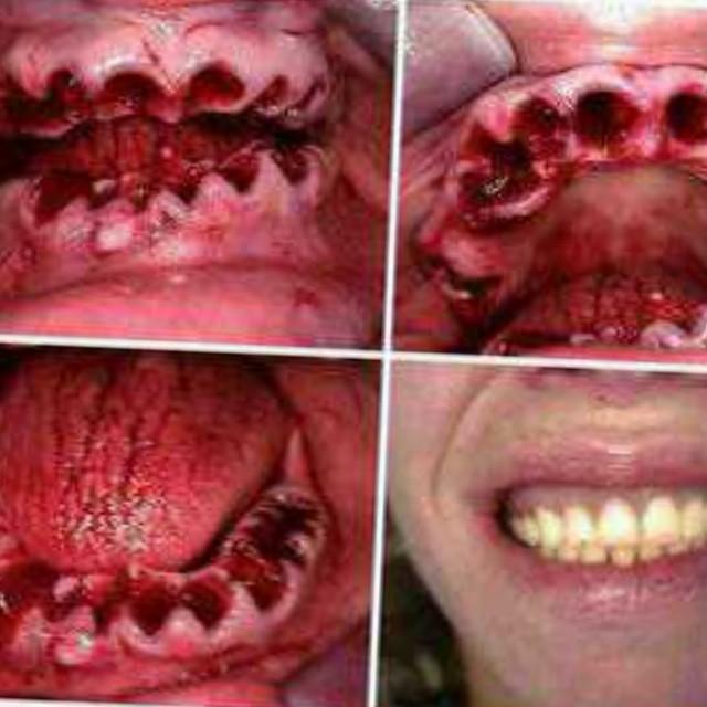this teeth pulled worth dentures free