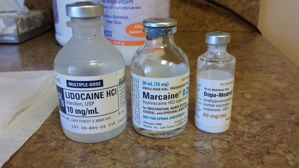 marcaine instead of lidocaine