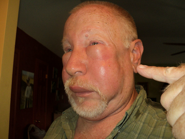 Bee Sting Allergic Reaction Rash