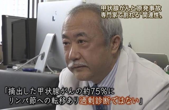 〈報導 STATION 福島甲狀腺癌特集〉截圖;福島醫大鈴木真一教授受訪,他認為,由於有7成5的手術患者有移轉到淋巴的情形,並非不必要的治療,亦即不是過度診斷。