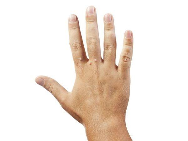 青春痘不要亂擠,小心是傳染性軟疣,傳染性軟疣屬於病毒感染,多發生在表皮,治療上以刮除術、冷凍治療、化學燒灼術治療,發現家人身上有類似症狀,盡早就醫檢查