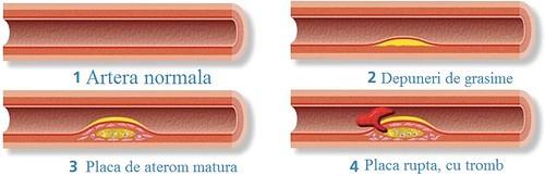 Formarea placilor de aterom in artere si coronare