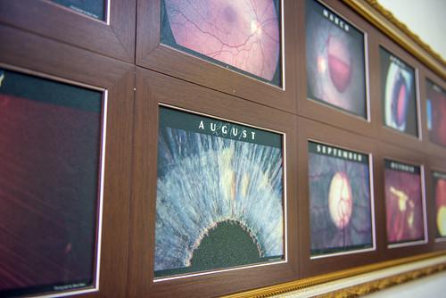 [高雄眼科推薦]高雄角膜塑形:陳征宇眼科諮詢心得分享 (26)