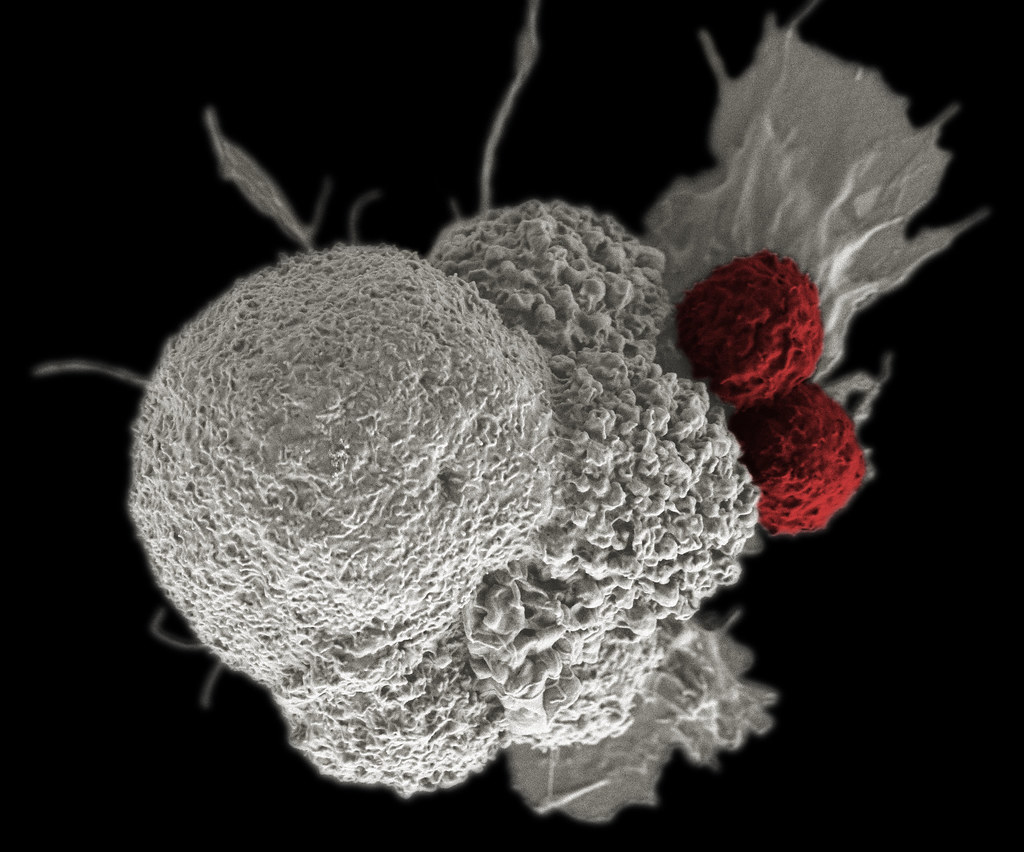 Cancer Immunotherapy - Shown here is a pseudo-colored scanni… - FlickrCancer Immunotherapy - 웹