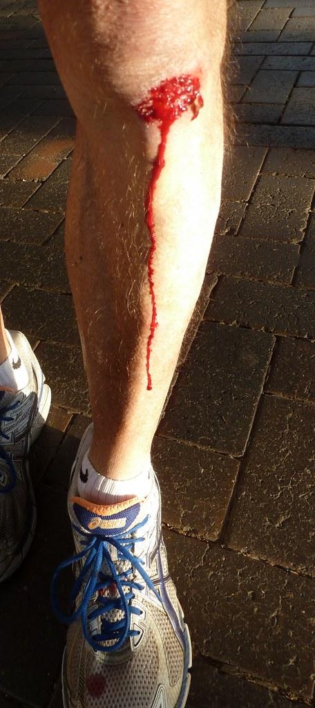 [My knee.]