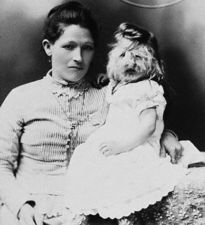 Бородатая девочка Алиса Доэрти со своей матерью
