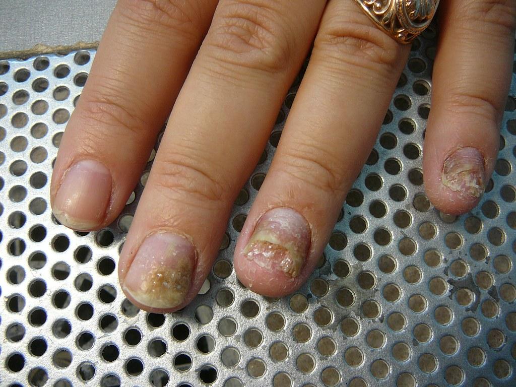 Грибок на ногтях ног чем лечить народные средства