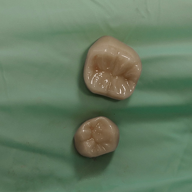 Crowns for teeth.