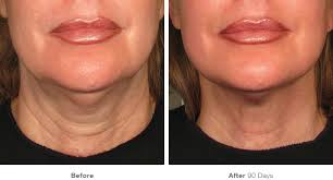 Collagen Booster – Ultherapy + Radiesse: Redensificacion y tensado de la piel