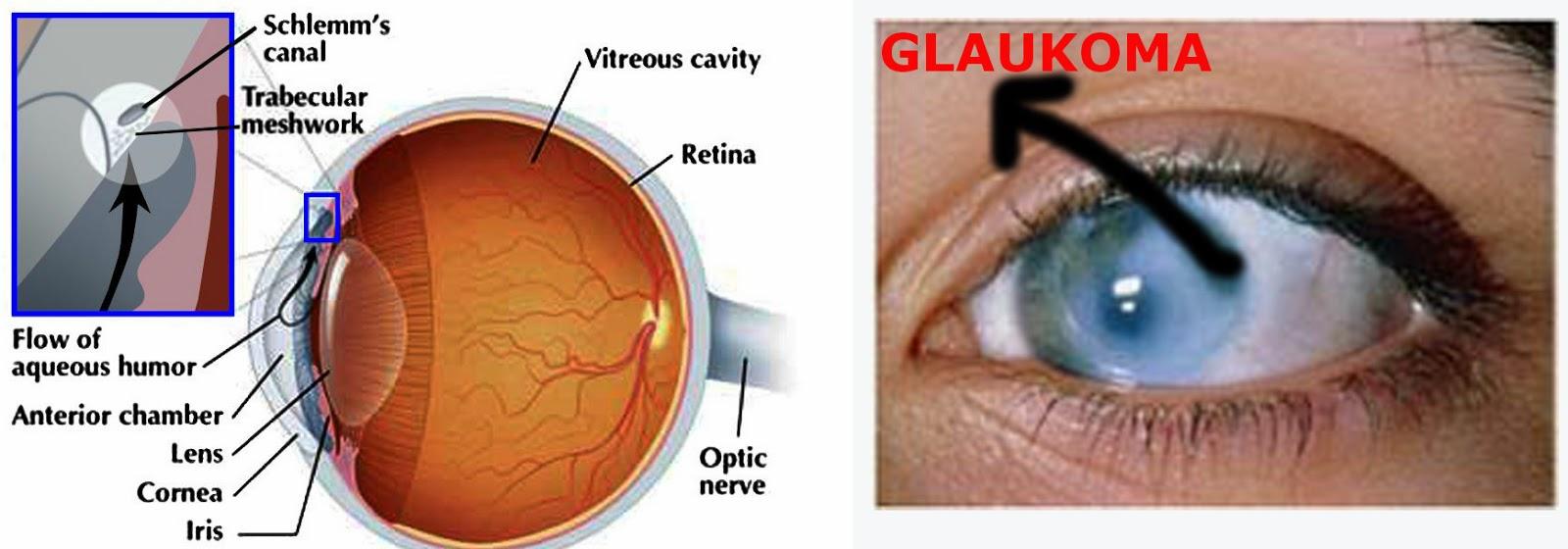 Ciri-Ciri Orang Terkena Penyakit Mata Glaukoma