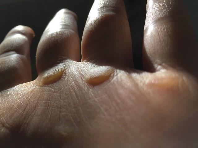 Calluses from pull-ups